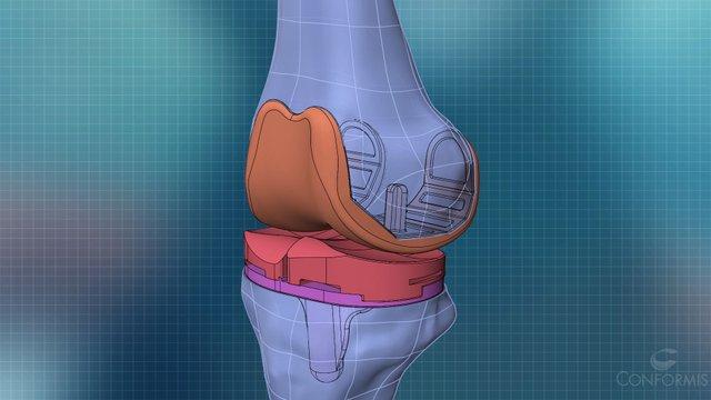 3-D Knee ConforMIS 2