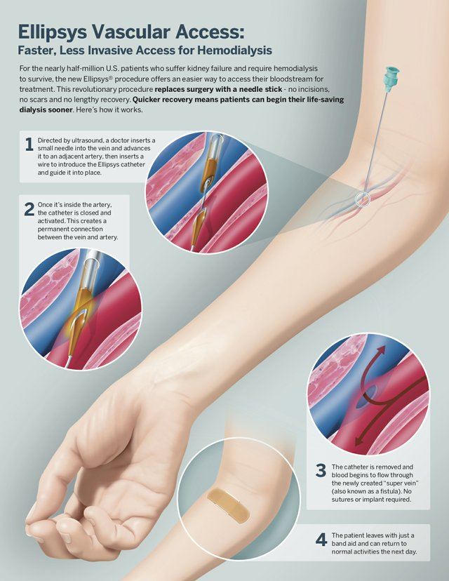 Ellipsys-Infographic-courtesy-avenu-medical.jpg