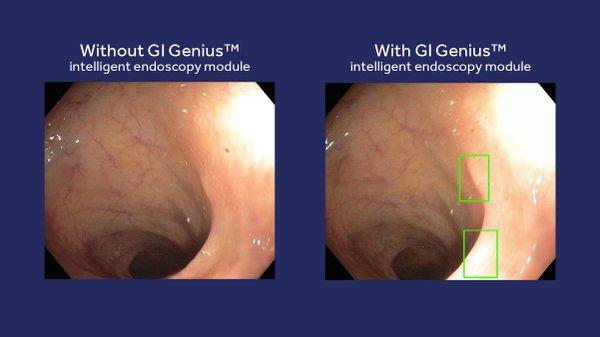 Scope video with GI Genius graphic 6.jpg