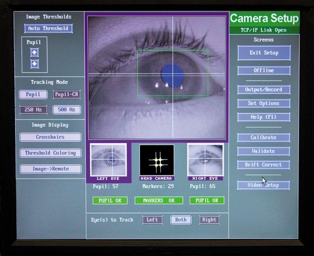 Parkinson's Eye Test